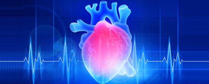 Infinx - Blog - Can AR be Streamlined for Cardiology 8 Tips to Optimize the RCM Process